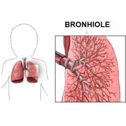 Bronsiolita