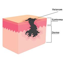 Anatomie melanom