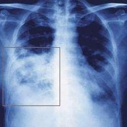 Radiografie plamani
