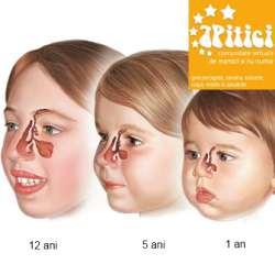 Evolutia sinusurilor la copii