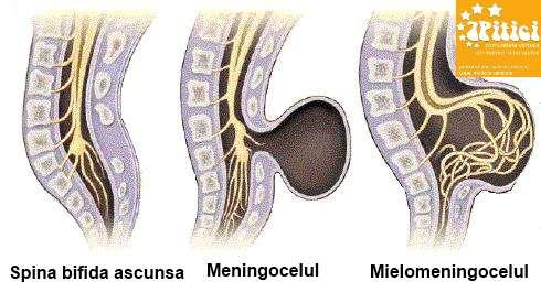 Tipuri de Spina bifida